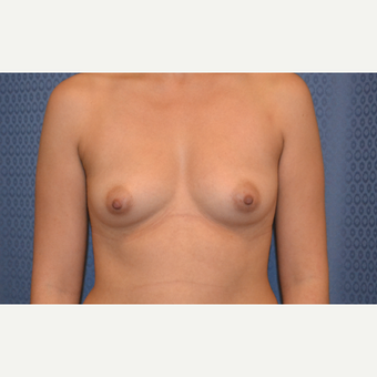 18-24 year old woman treated with Breast Augmentation before 3816389
