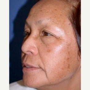 Scar Removal before 1724704