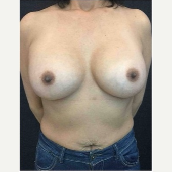 45-54 year old woman treated with Breast Augmentation after 3103473