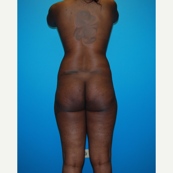 18-24 year old woman treated with Smart Lipo before 3452621
