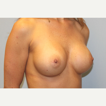 25-34 year old woman treated with Breast Augmentation after 3570157