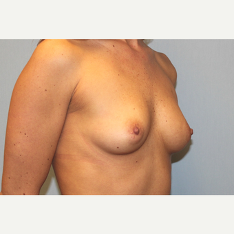 25-34 year old woman treated with Breast Augmentation before 3570157