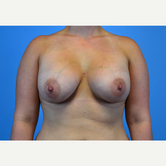 25-34 year old woman treated with Breast Implants after 3439891