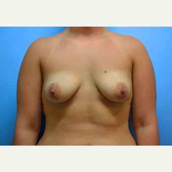 25-34 year old woman treated with Breast Implants before 3439891