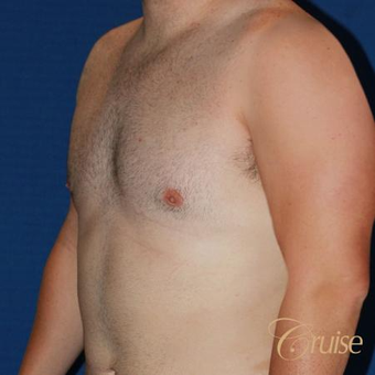 Male breast reduction surgery on a 28 year old male after 3502232
