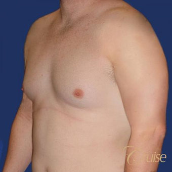 Male breast reduction surgery on a 28 year old male before 3502232