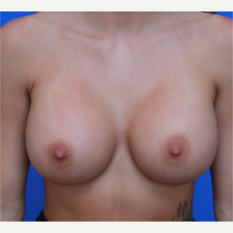 21- year old woman treated with Breast Augmentation after 3108925