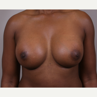45-54 year old woman treated with Breast Implants after 3142048