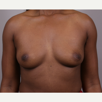 45-54 year old woman treated with Breast Implants before 3142048