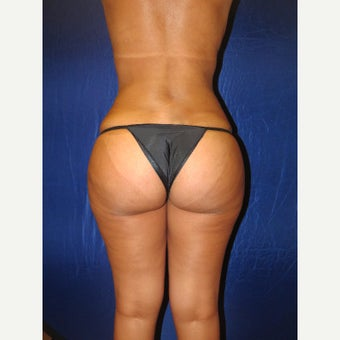 25-34 year old woman treated with Brazilian Butt Lift after 2166782