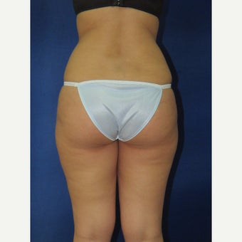 25-34 year old woman treated with Brazilian Butt Lift before 2166782
