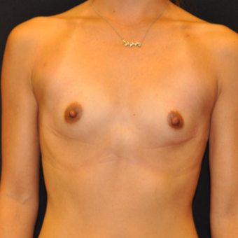 Breast Augmentation before 3007777