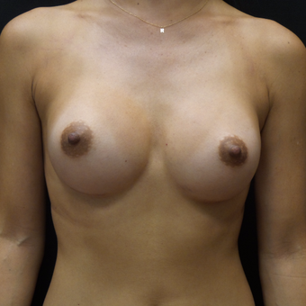 Breast Augmentation after 3007777
