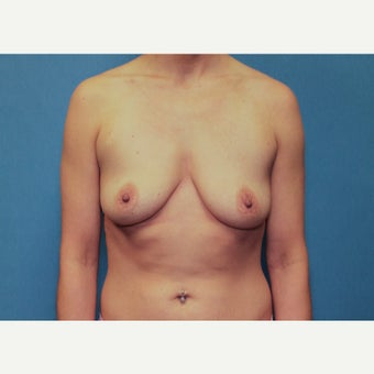 25-34 year old woman treated with Breast Augmentation before 1758193