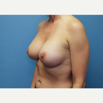 25-34 year old woman treated with Breast Augmentation 1758193