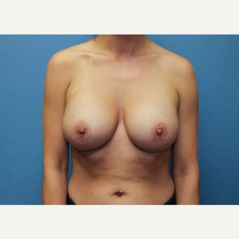 25-34 year old woman treated with Breast Augmentation