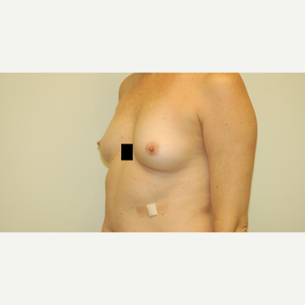 35-44 year old woman treated with Breast Augmentation before 3281342