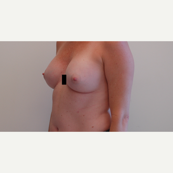 35-44 year old woman treated with Breast Augmentation after 3281342