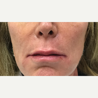 53 year old woman treated with Restylane Silk injected into upper and lower lips after 3656667