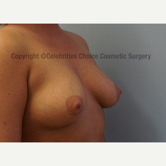 25-34 year old woman treated with Breast Implants before 3156523