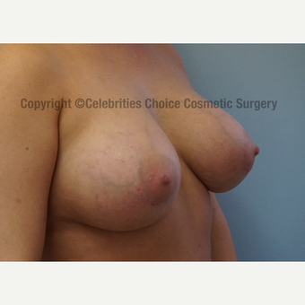 25-34 year old woman treated with Breast Implants after 3156523