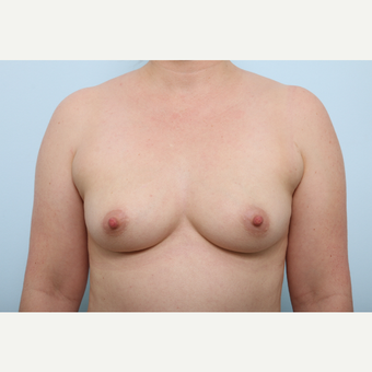 Breast Augmentation before 3345389