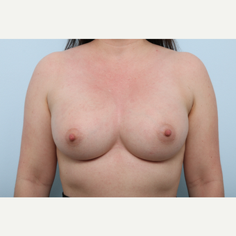 Breast Augmentation after 3345389