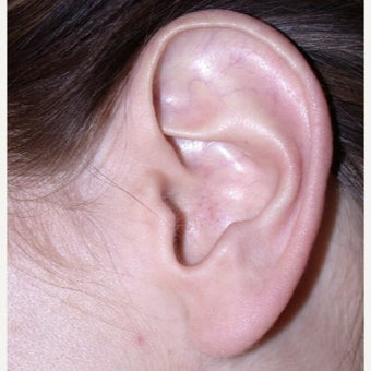 25-34 year old woman treated with Ear Surgery by Toronto Plastic Surgeon Dr. Leila Kasrai