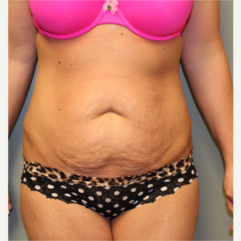 25-34 year old woman treated with Tummy Tuck before 3406791