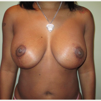 35-44 year old woman treated with Breast Lift after 3664830