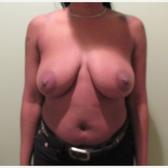 35-44 year old woman treated with Breast Lift before 3664830