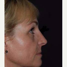 Rhinoplasty after 3148718