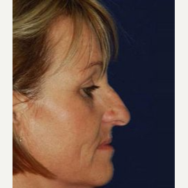 Rhinoplasty before 3148718