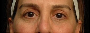 55-64 year old woman treated with Eyelid Surgery after 3658938