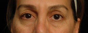 55-64 year old woman treated with Eyelid Surgery before 3658938