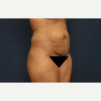 25-34 year old woman treated with Tummy Tuck before 3344943