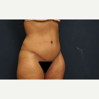 25-34 year old woman treated with Tummy Tuck after 3344943