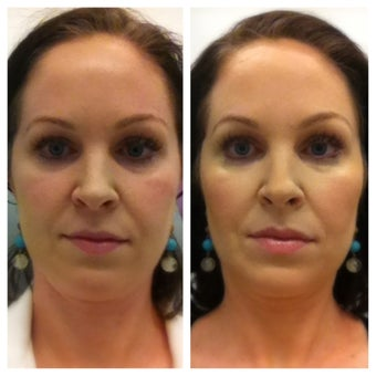 Juvederm Voluma before 1196543