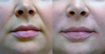 Restylane Filler to Nasolabial Folds before 1306475