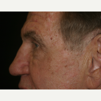 67 Year old male with heavy upper eyelids after 3218585
