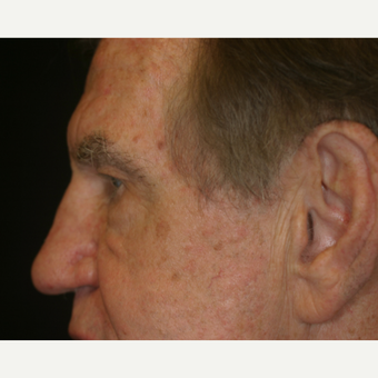 67 Year old male with heavy upper eyelids before 3218585