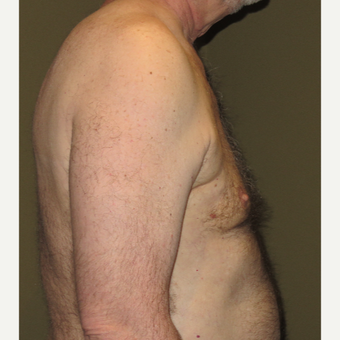 55-64 year old man treated with Male Breast Reduction (Gynecomastia ) after 3625229