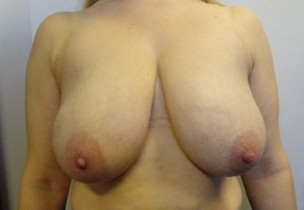 Breast Reduction before 2415254