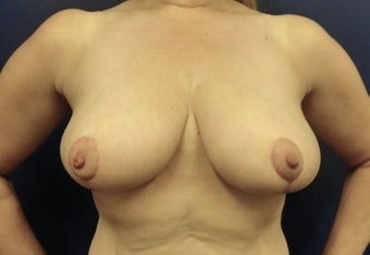 Breast Reduction after 2415254