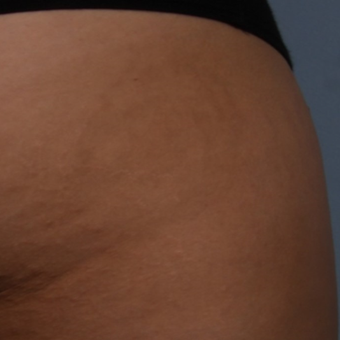 18-24 year old woman treated with Stretch Marks Treatment after 3224995