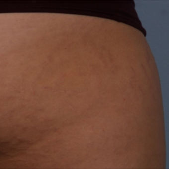18-24 year old woman treated with Stretch Marks Treatment