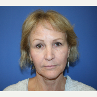 55-64 year old woman treated with Facelift before 2994082