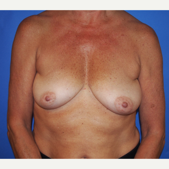 58 year old female treated with Breast Implants (Silicone) and Breast Lift before 3490184