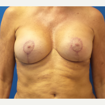58 year old female treated with Breast Implants (Silicone) and Breast Lift after 3490184