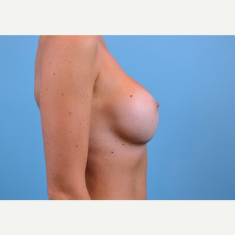 25-34 year old woman treated with Breast Implants after 3440038